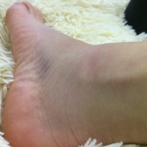 Linda her ankle